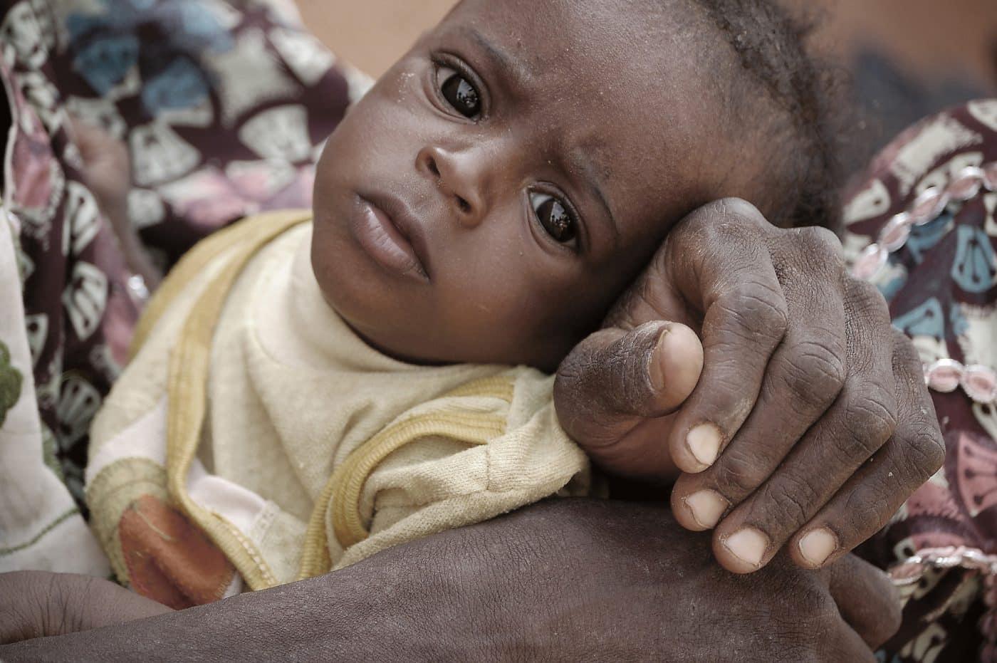 Underernæret barn fra Niger. Foto: Julie Lorenzen.jpg